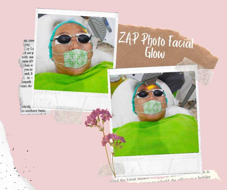 ZAP Photo Facial Glow